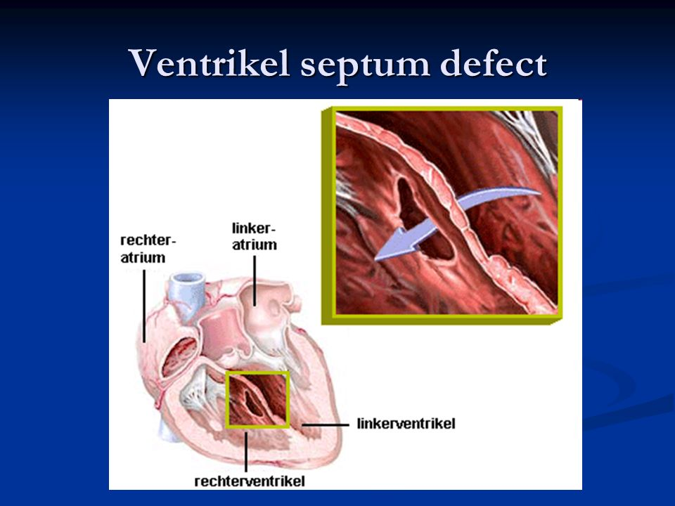 Ventrikel septum defect