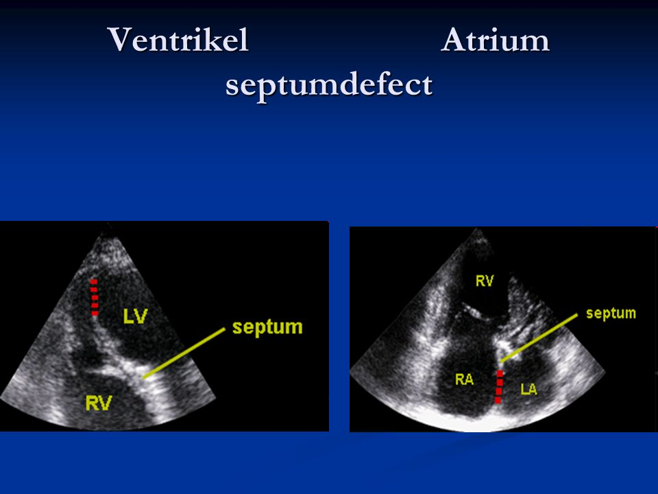 Ventrikel Atrium septumdefect