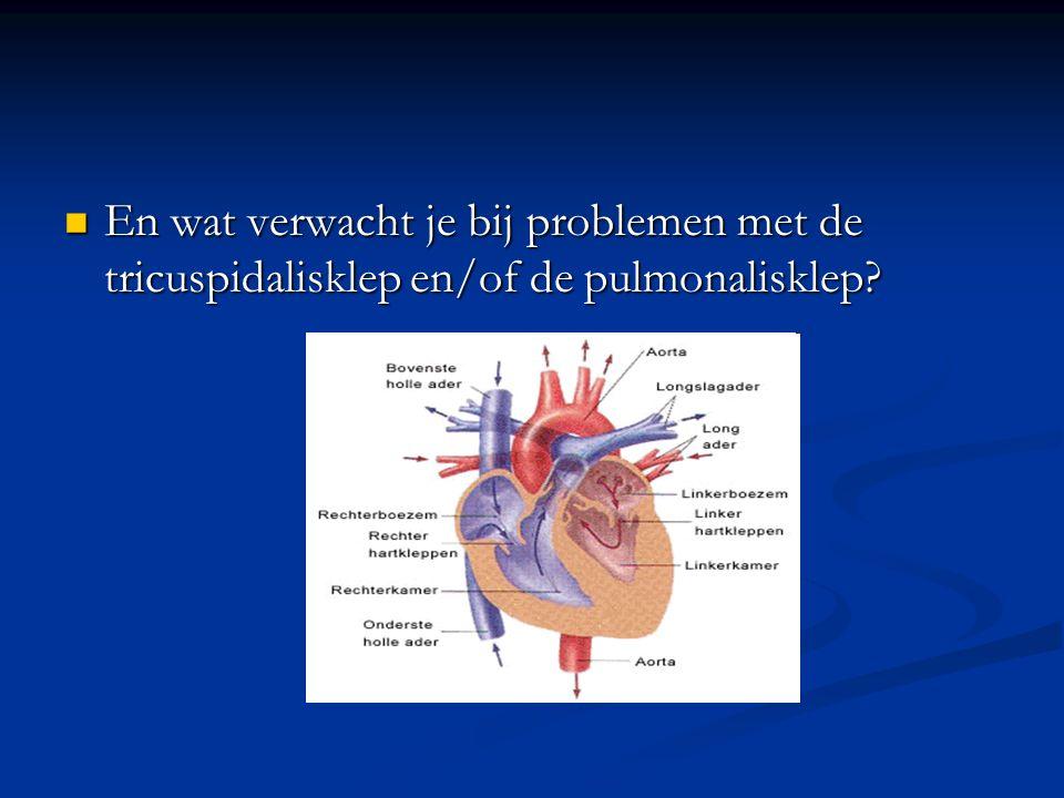 En wat verwacht je bij problemen met de tricuspidalisklep en/of de pulmonalisklep