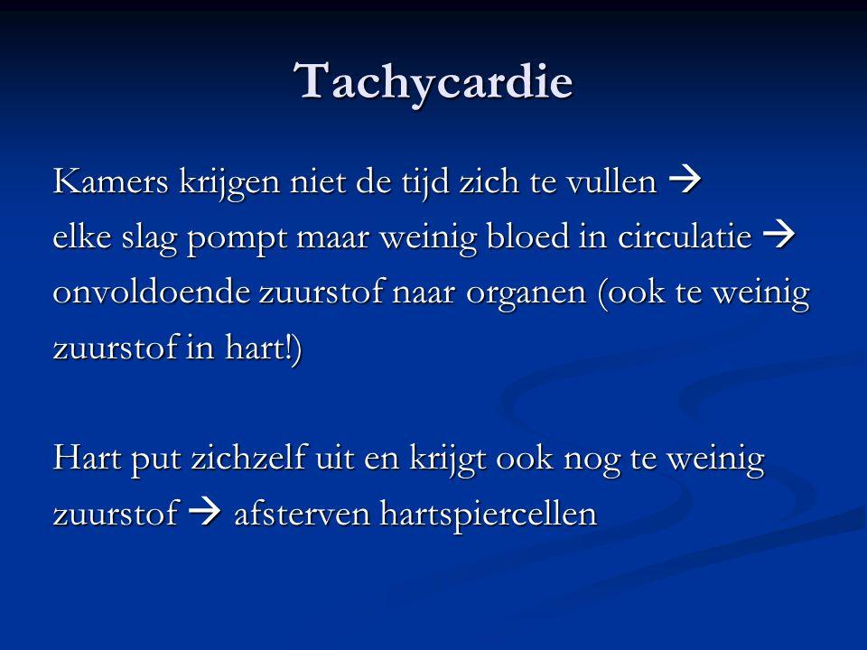 Tachycardie Kamers krijgen niet de tijd zich te vullen 