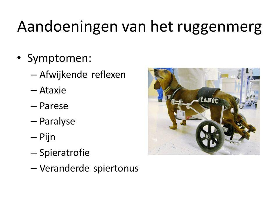 Aandoeningen van het ruggenmerg