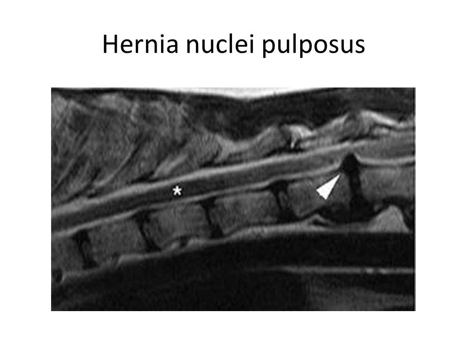 Hernia nuclei pulposus