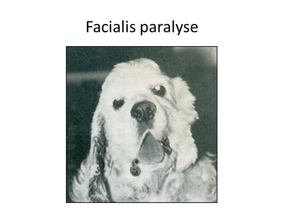 Facialis paralyse