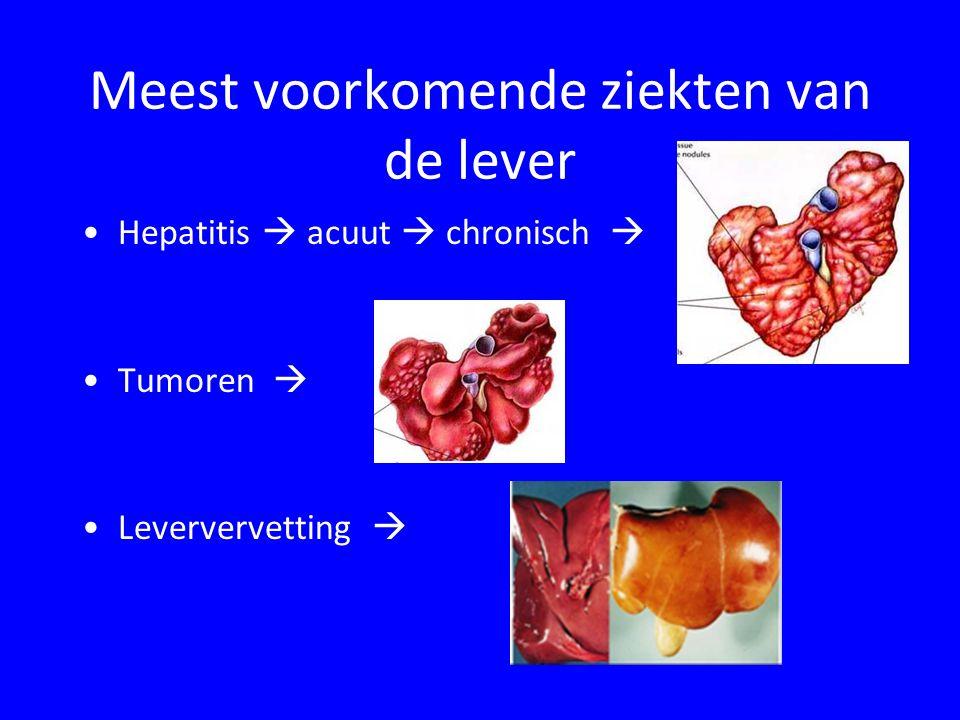 Meest voorkomende ziekten van de lever