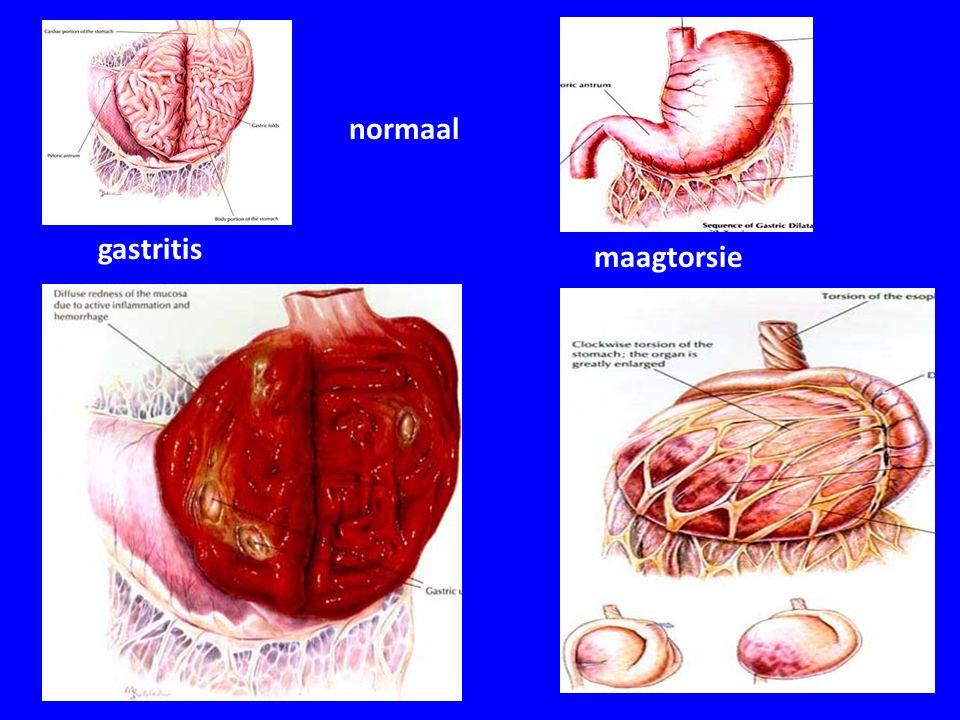 normaal gastritis maagtorsie
