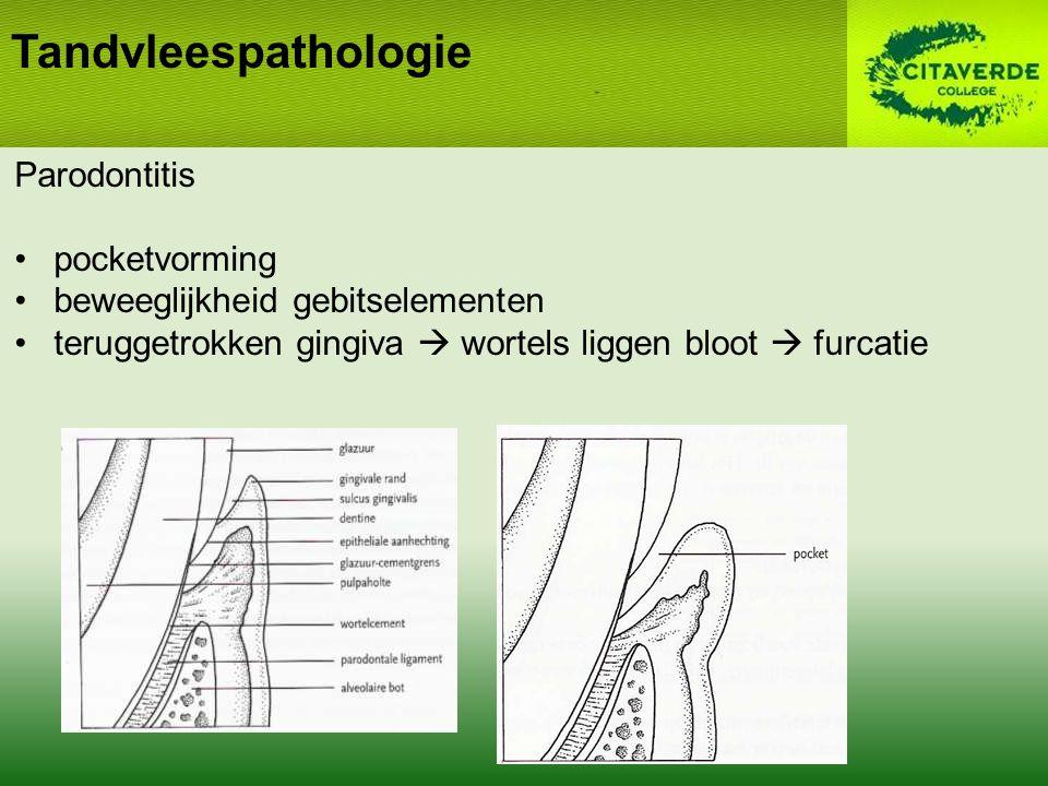 Tandvleespathologie Parodontitis pocketvorming