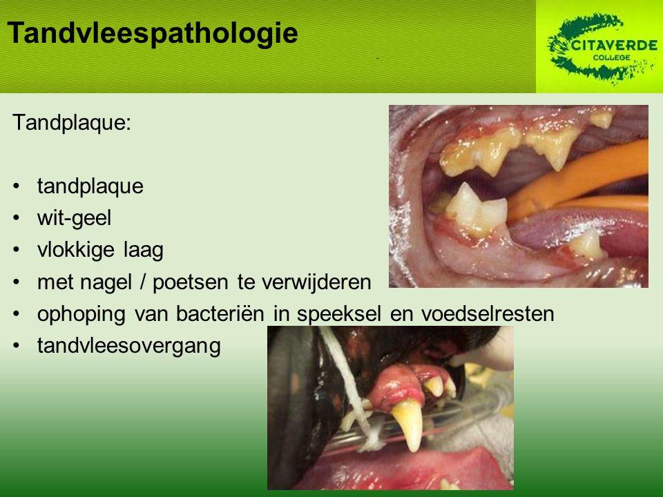 Tandvleespathologie Tandplaque: tandplaque wit-geel vlokkige laag