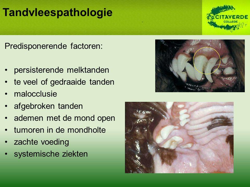 Tandvleespathologie Predisponerende factoren: persisterende melktanden