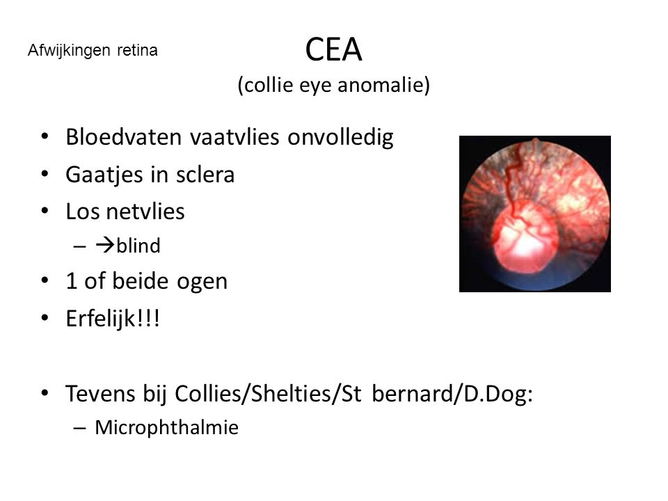 CEA (collie eye anomalie)