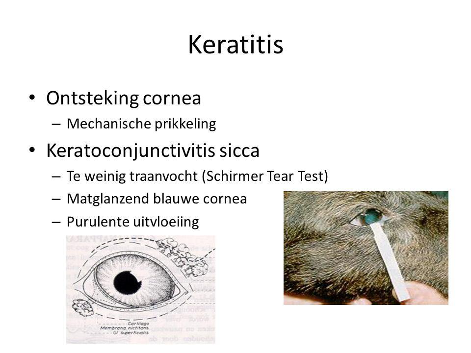 Keratitis Ontsteking cornea Keratoconjunctivitis sicca