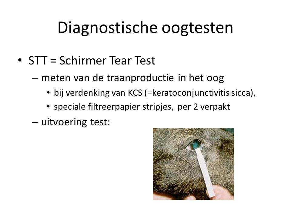 Diagnostische oogtesten