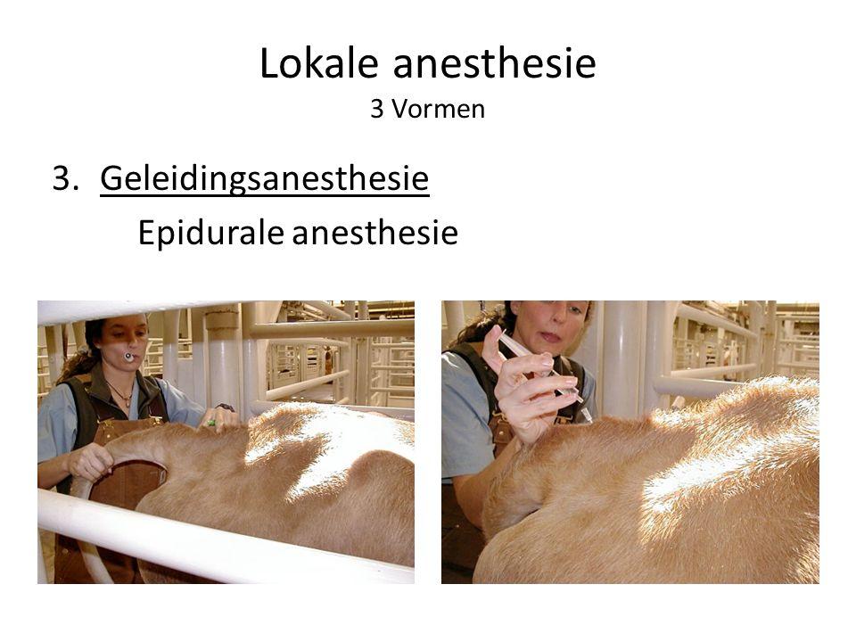 Lokale anesthesie 3 Vormen