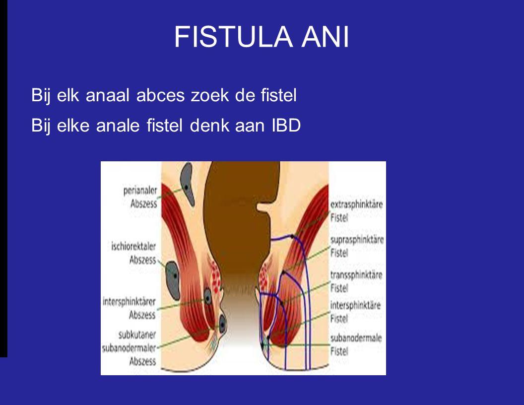 FISTULA ANI Bij elk anaal abces zoek de fistel Bij elke anale fistel denk aan IBD