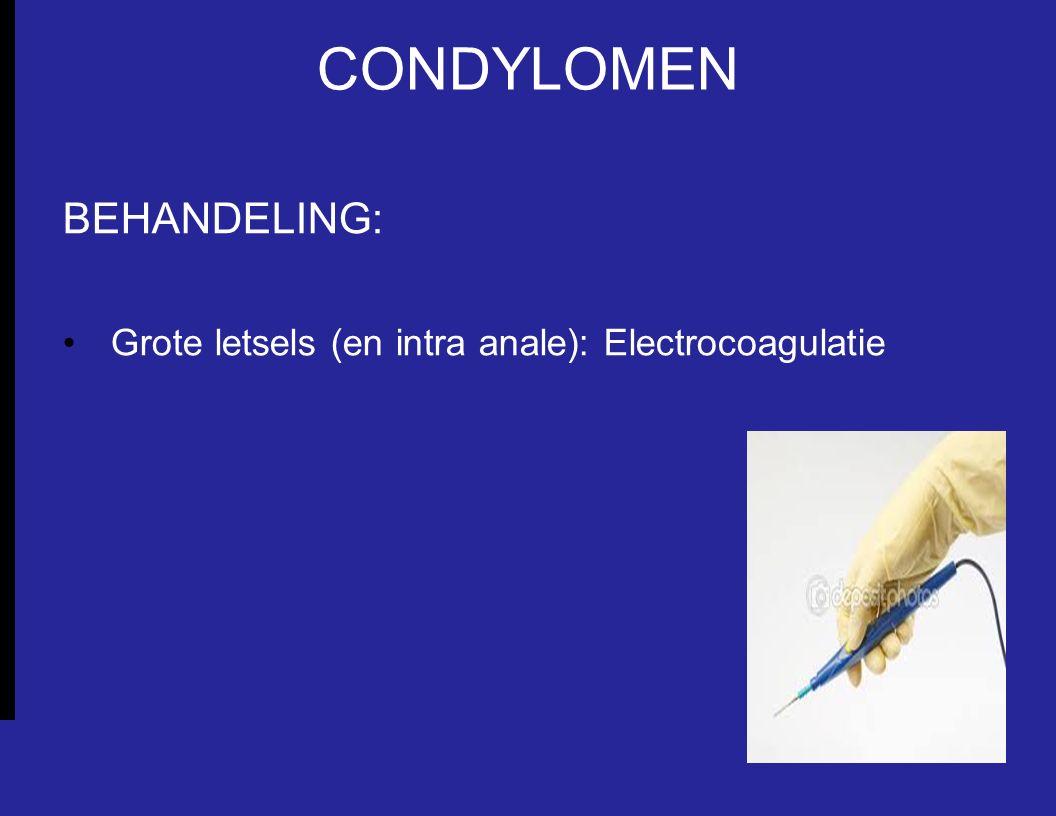 CONDYLOMEN BEHANDELING: