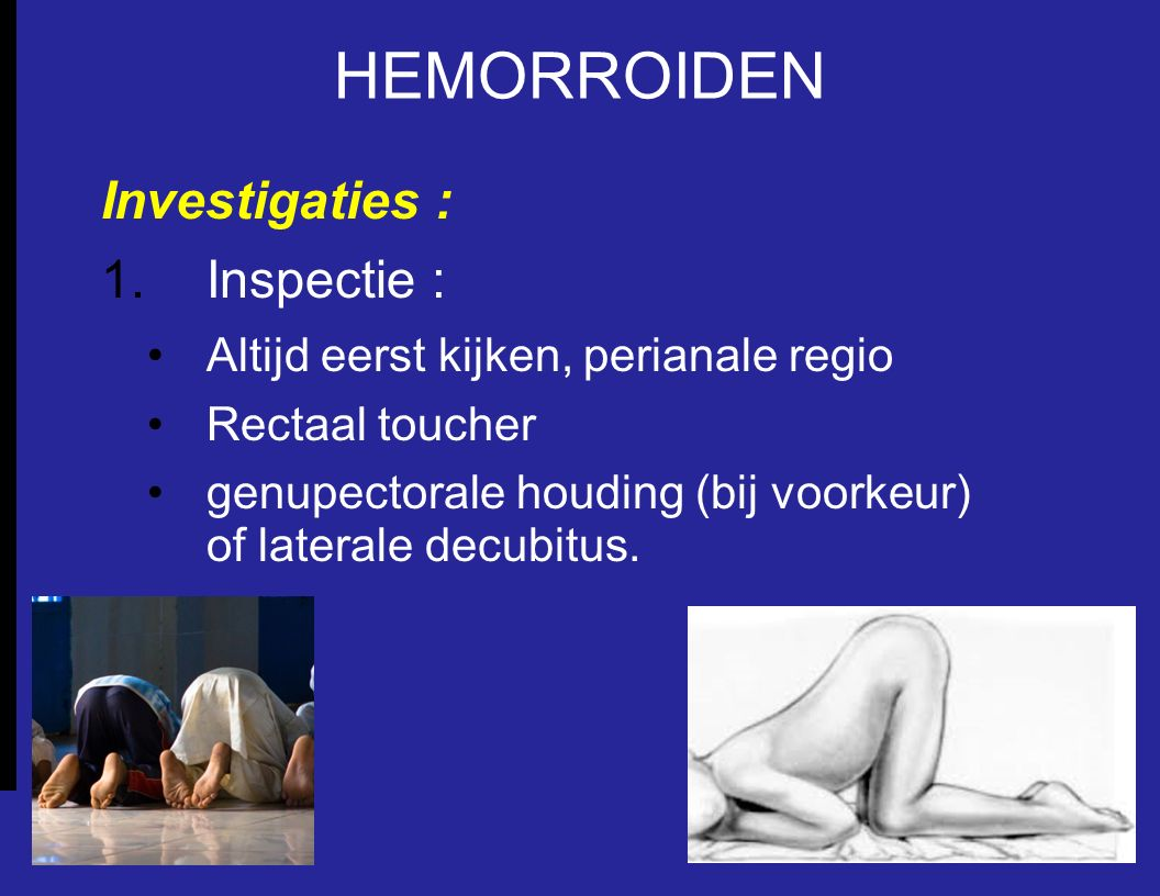 HEMORROIDEN Investigaties : Inspectie :