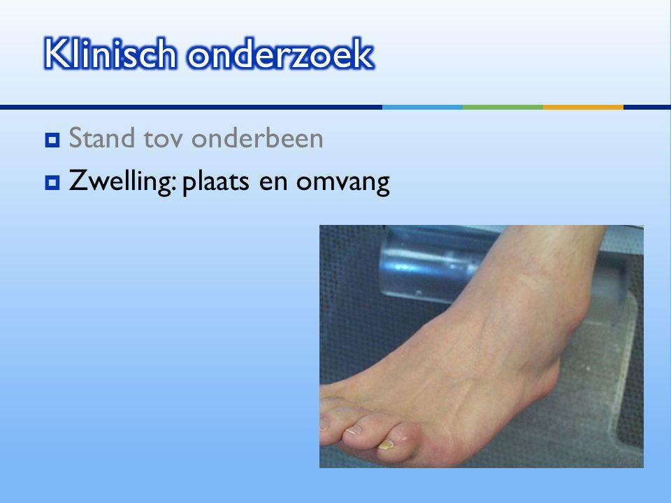 Klinisch onderzoek Stand tov onderbeen Zwelling: plaats en omvang