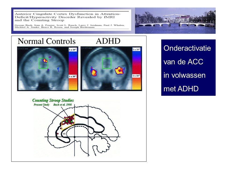 Onderactivatie van de ACC in volwassen met ADHD