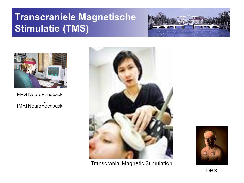 Transcraniele Magnetische Stimulatie (TMS)