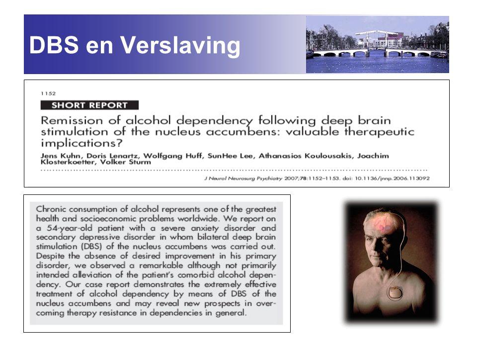 DBS en Verslaving