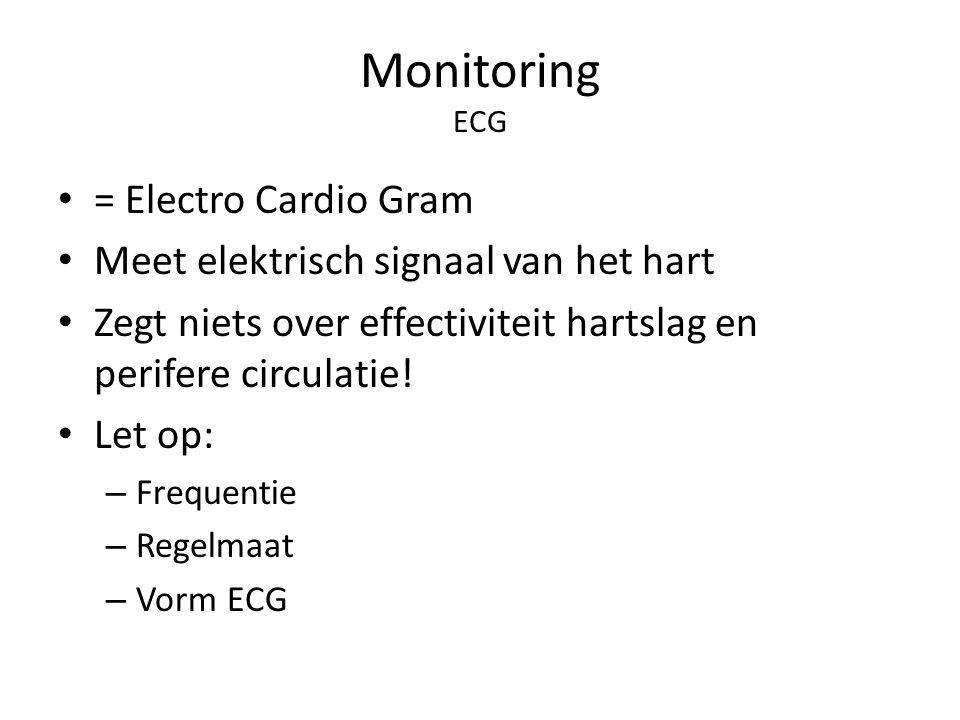 Monitoring ECG = Electro Cardio Gram