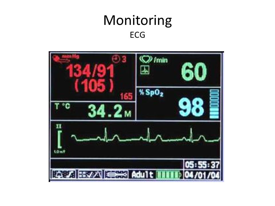 Monitoring ECG