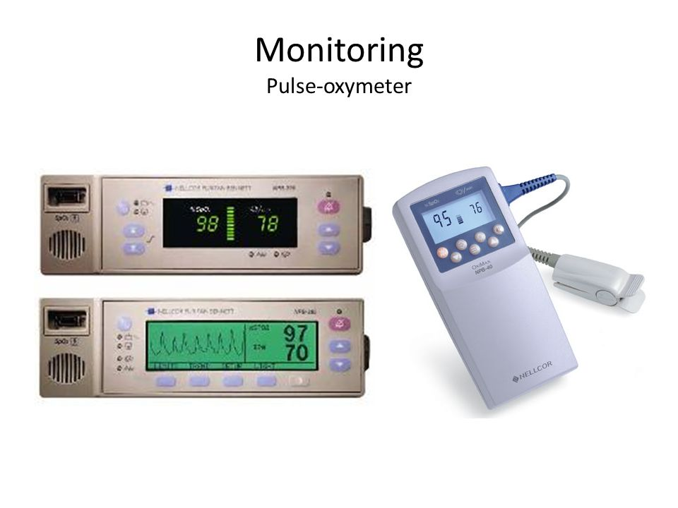 Monitoring Pulse-oxymeter