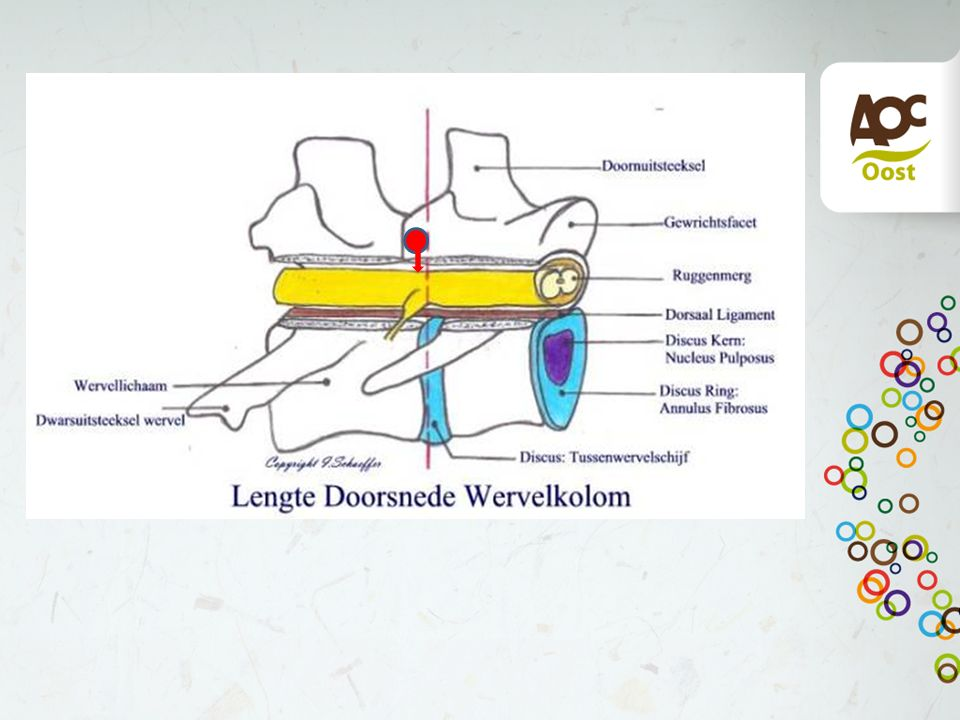 3. Vertical tripping Verplaatsing van de cranio dorsale oppervlak in het wervelkanaal. Meestal C6 of C7.