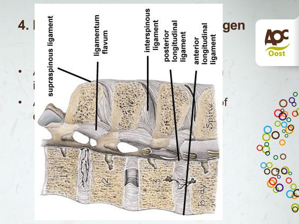 4. Hypertrofie lig flavum/afwijkingen aan de wervelboog