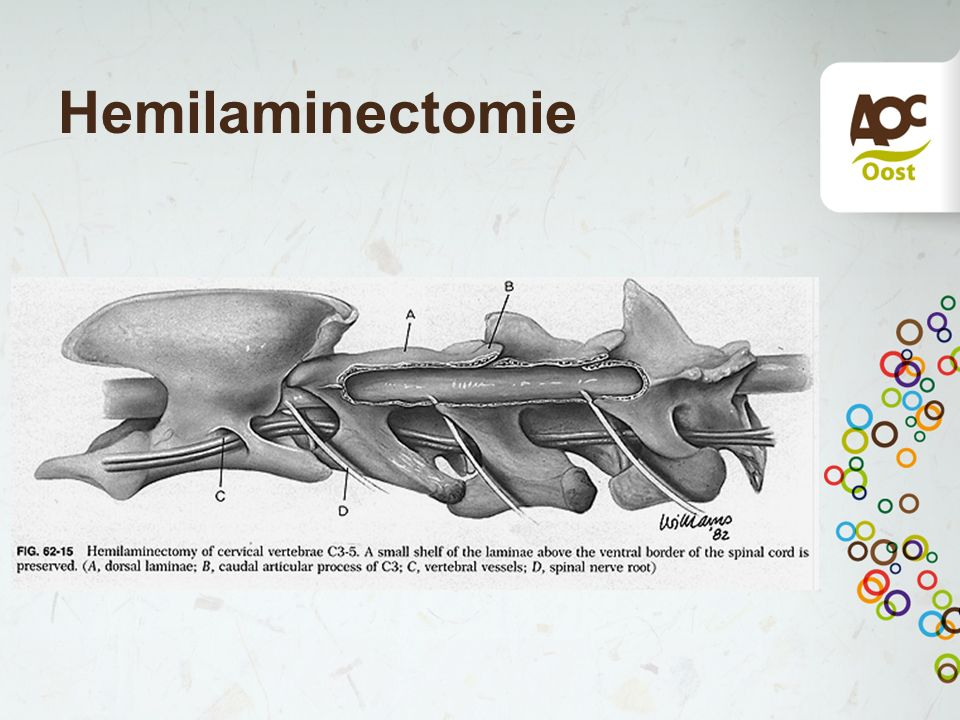 Hemilaminectomie