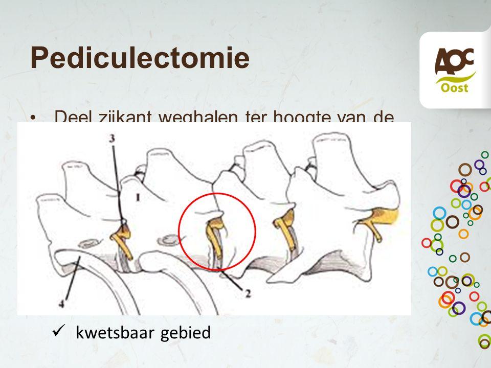 Pediculectomie Deel zijkant weghalen ter hoogte van de opening waar de zenuwen uittreden. Voordeel: