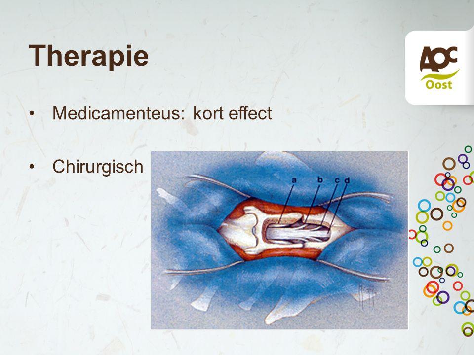 Therapie Medicamenteus: kort effect Chirurgisch