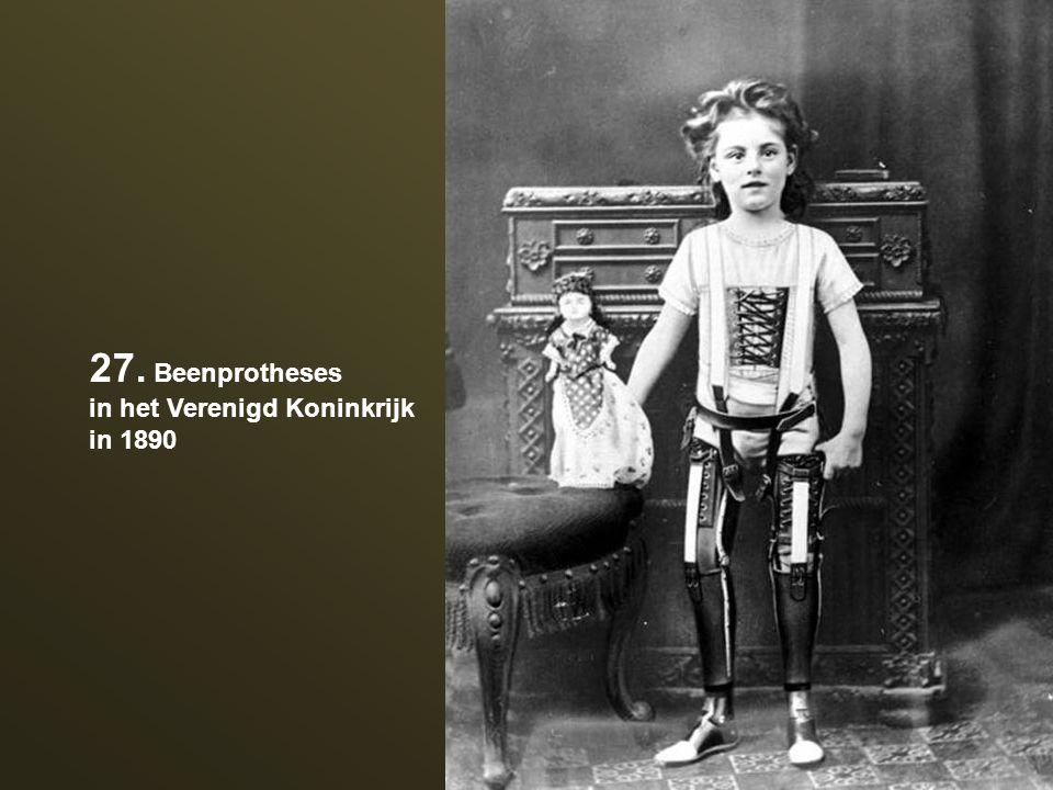 27. Beenprotheses in het Verenigd Koninkrijk in 1890