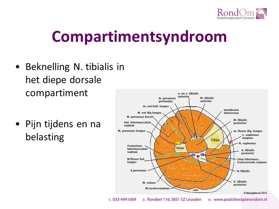 Compartimentsyndroom