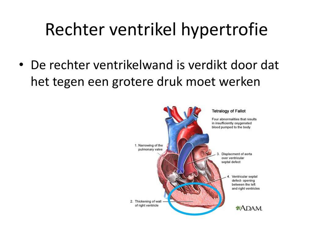Atemberaubend Anatomie Des Rechten Ventrikels Ideen - Anatomie Von ...