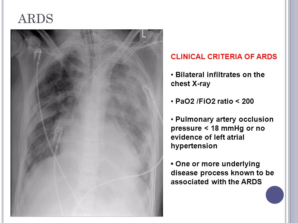 ARDS CLINICAL CRITERIA OF ARDS