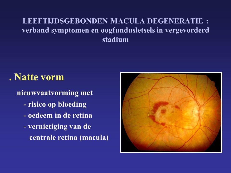 Leeftijdsgebonden macula degeneratie ppt download for Behandeling oedeem