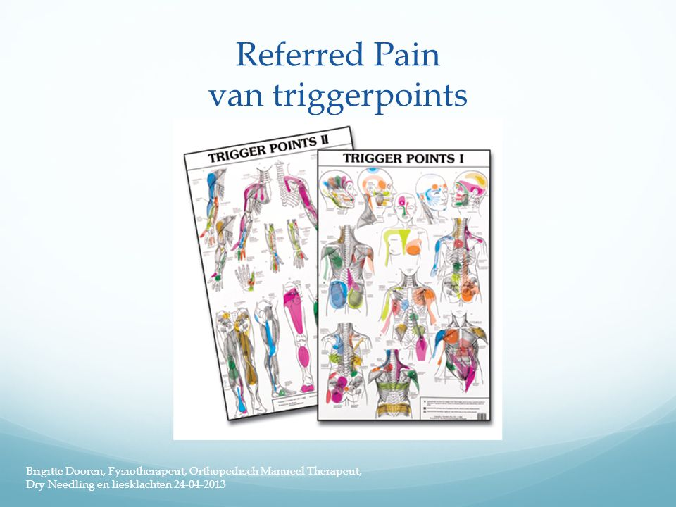 Referred Pain van triggerpoints