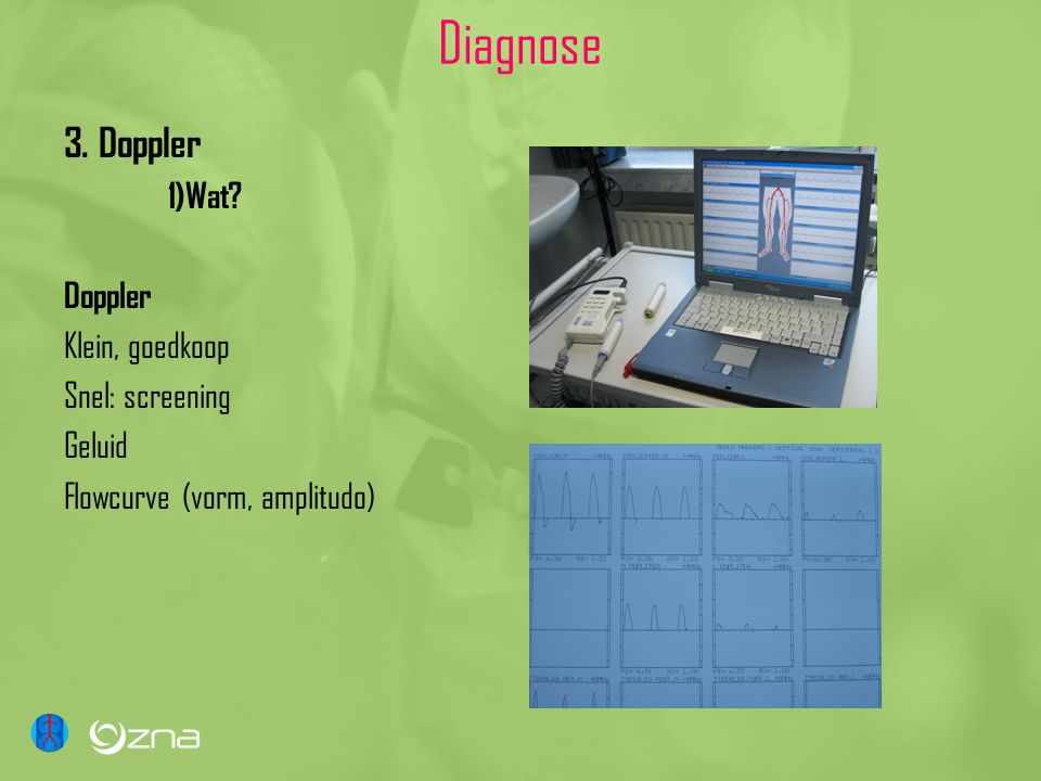 Diagnose 3. Doppler 1)Wat Doppler Klein, goedkoop Snel: screening