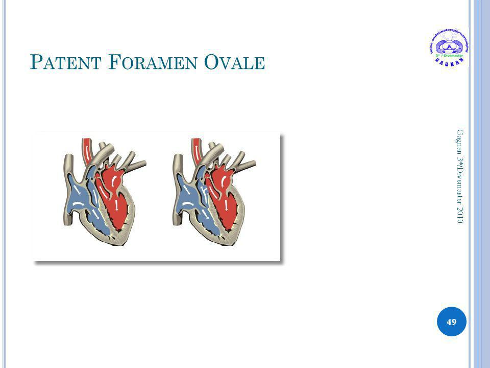 Patent Foramen Ovale Gagnan 3*/Divemaster 2010
