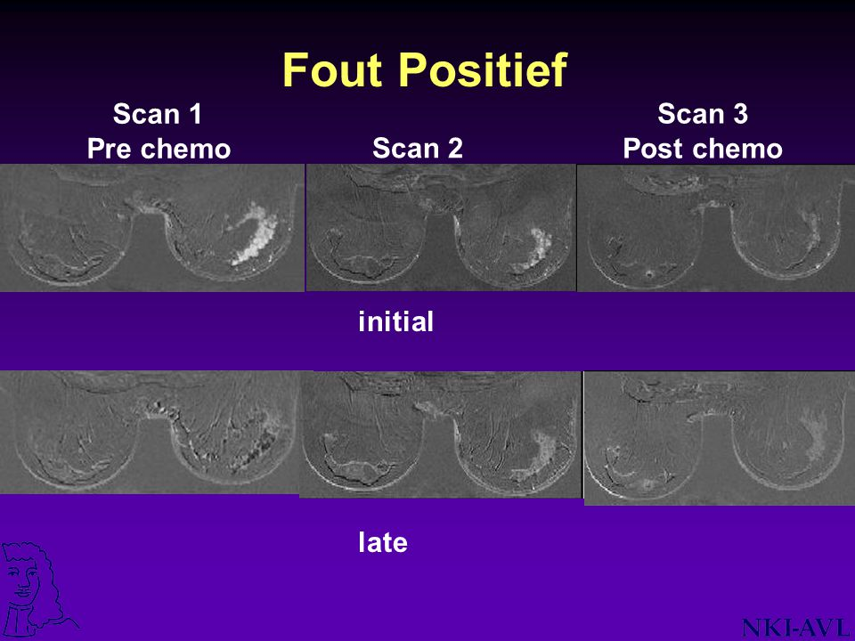 Fout Positief Scan 1 Pre chemo Scan 3 Post chemo Scan 2 initial late