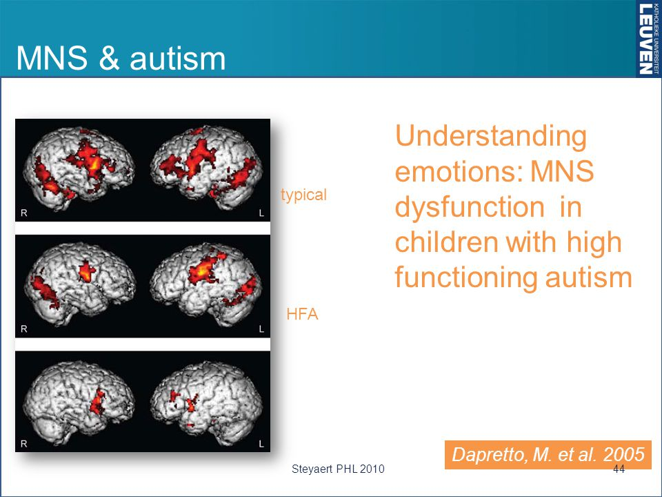 MNS & autism Understanding emotions: MNS dysfunction in children with high functioning autism. typical.