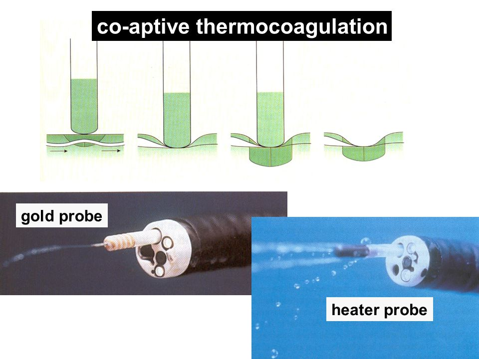 co-aptive thermocoagulation