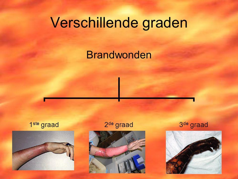 EHBO Bij Brandwonden. ...