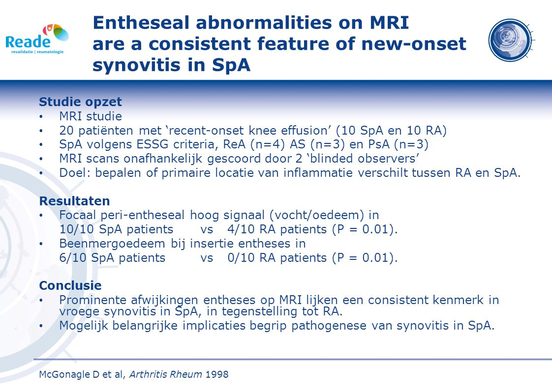 Entheseal abnormalities on MRI are a consistent feature of new-onset synovitis in SpA