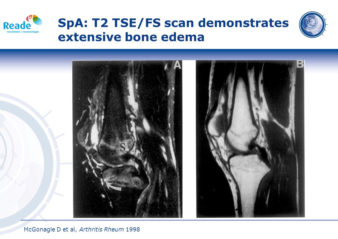 SpA: T2 TSE/FS scan demonstrates extensive bone edema