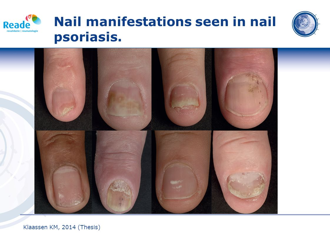 Nail manifestations seen in nail psoriasis.
